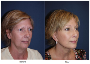 brow lift patient of Dr. Freeman