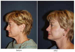 rhinoplasty result to a patient