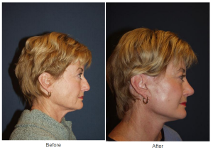 Rhinoplasty surgery - Charlotte NC Facial plastic surgeon
