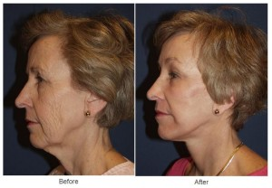 Laser Resurfacing in Charlotte, NC