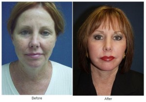 Lip Augmentation in Charlotte, NC