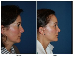 Soof - lower lid blepharoplasty in Charlotte,NC