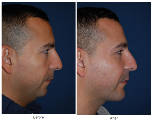 Facial Implants in Charlotte, NC