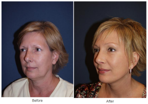 Rhinoplasty and Botox Charlotte NC - Dr. Freeman's Makeover