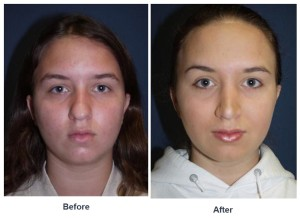 Teen rhinoplasty surgery in Charlotte, NC