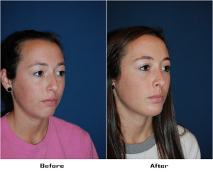 Teen rhinoplasty surgery - Charlotte NC