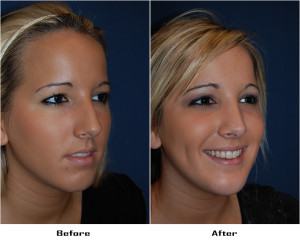 Teen Rhinoplasty in Charlotte, NC