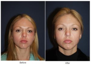 Eyelid Surgery or Eyelift in Charlotte, NC