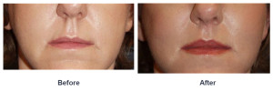 Lip lift or Lip enhancement in Charlotte, NC