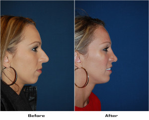 Rhinoplasty in Charlotte, NC