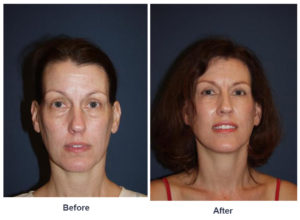 Upper eye lid or Eye lift surgery in Charlotte, NC
