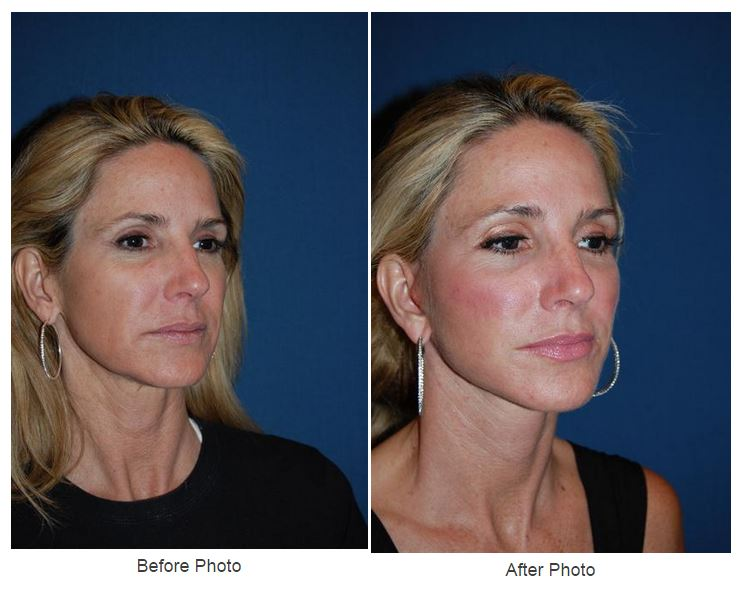 Facial and cosmetic surgery in asheville nc