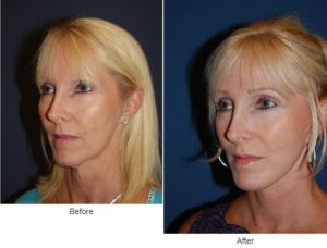 BOTOX in Charlotte, NC