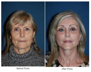 Eyelid or Eye lift in Charlotte, NC