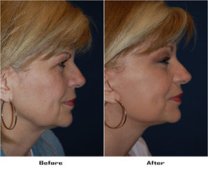 Facial plastic surgery in Charlotte, NC
