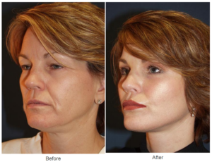 Lip enhancement in Charlotte, NC