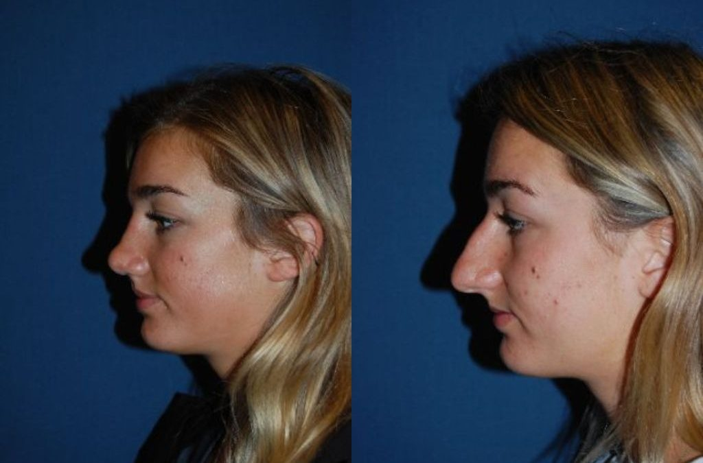 Revision rhinoplasty in Charlotte, NC