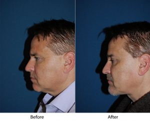 Rhinoplasty revision in Charlotte, NC and how it works
