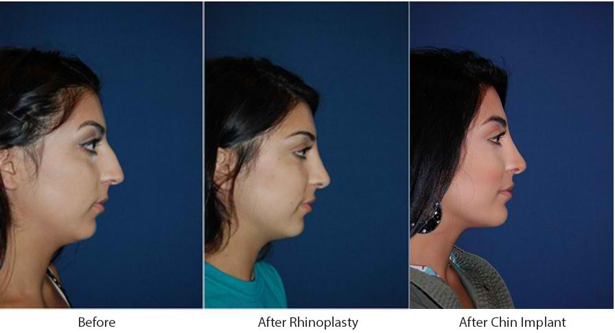 Rhinoplasty in Charlotte has two nose job categories, each with its purposes