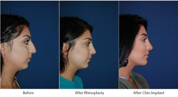 Best rhinoplasty specialist in Charlotte, NC, and the procedures