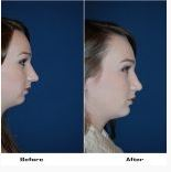 Teen Rhinoplasty surgeon, Dr. Sean Freeman, Charlotte NC