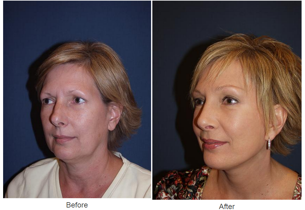 Top rhinoplasty specialist in Charlotte, NC and the reason to schedule an appointment