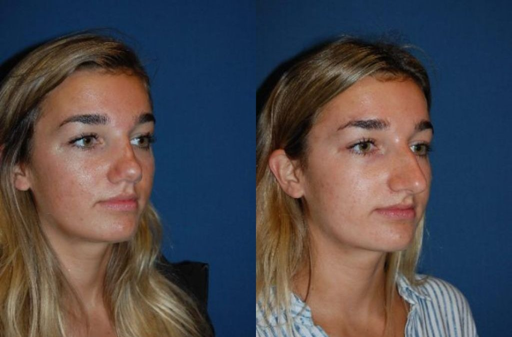 Rhinoplasty nose job in Charlotte, NC and what to expect in surgery