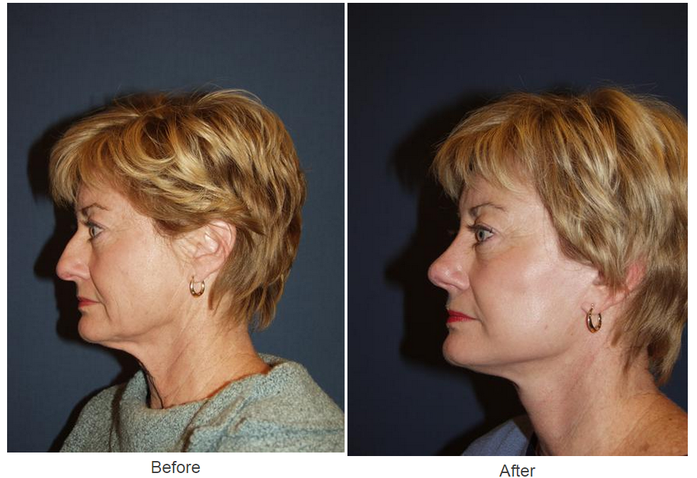 Best rhinoplasty specialist for medical or cosmetic procedure in Charlotte, NC
