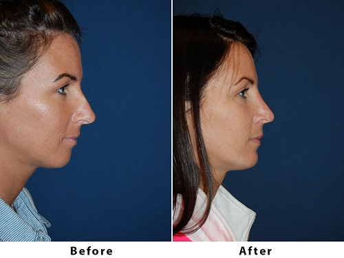 Best nose surgery for patients in Charlotte wanting to change the size of their nose