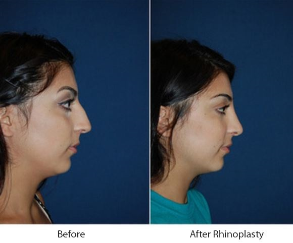 Best rhinoplasty surgeon in Charlotte, NC for a nose job