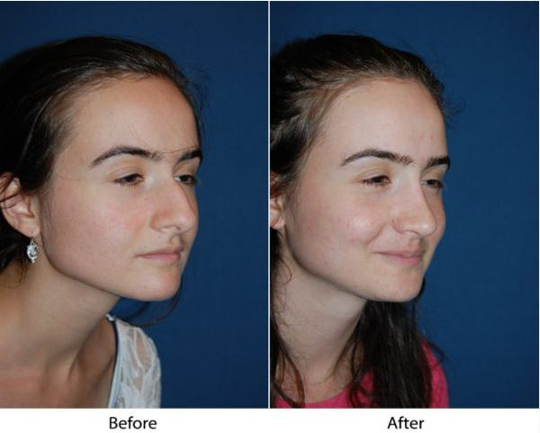 Rhinoplasty specialists in Charlotte: Find the top nose job surgeon