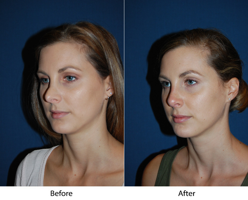 Rhinoplasty surgery in Charlotte NC to change your nose