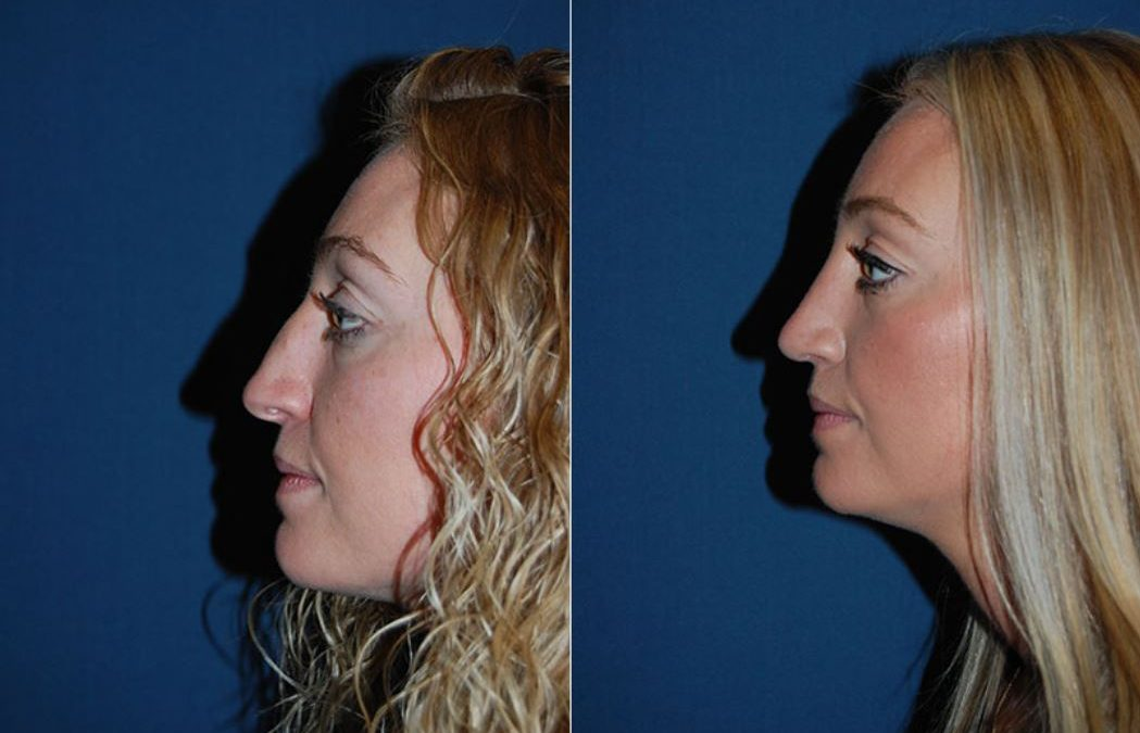 Nose job surgeon in Charlotte NC offers dorsal hump removal