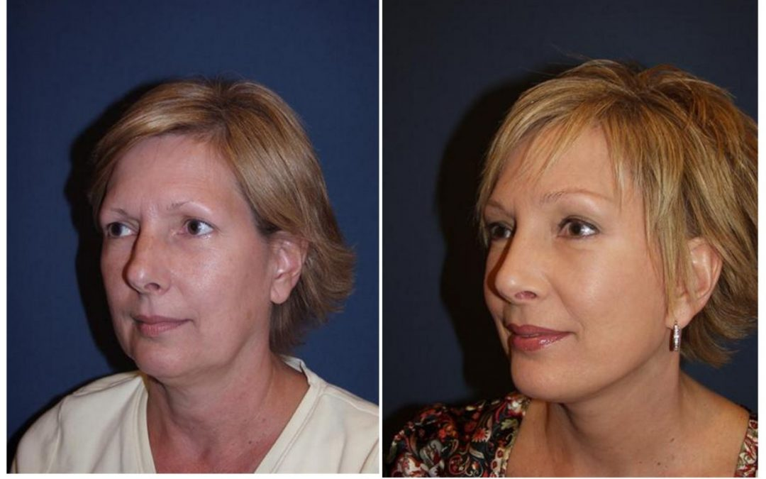 Top rhinoplasty surgeon in Charlotte NC guide to healing after rhinoplasty surgery