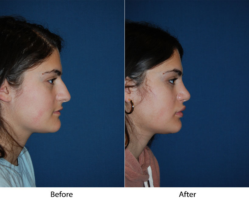 Nose job surgery in Charlotte NC: the recovery time after surgery