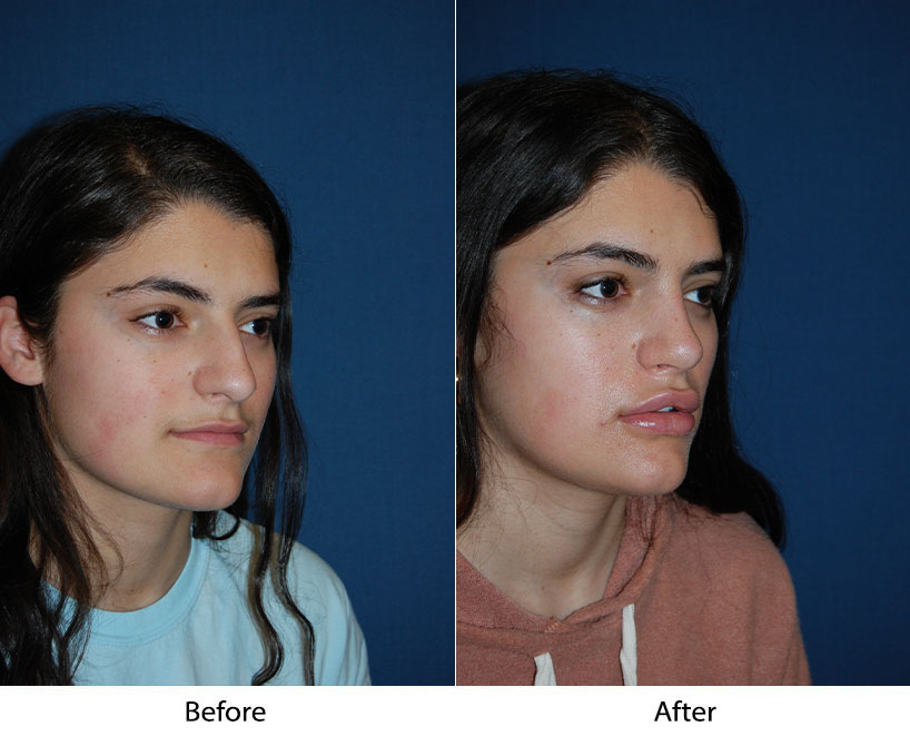 Top nose job surgery in Charlotte NC: how safe is a rhinoplasty