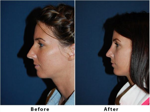 Rhinoplasty expert in Charlotte performs nose surgery with chin augmentation