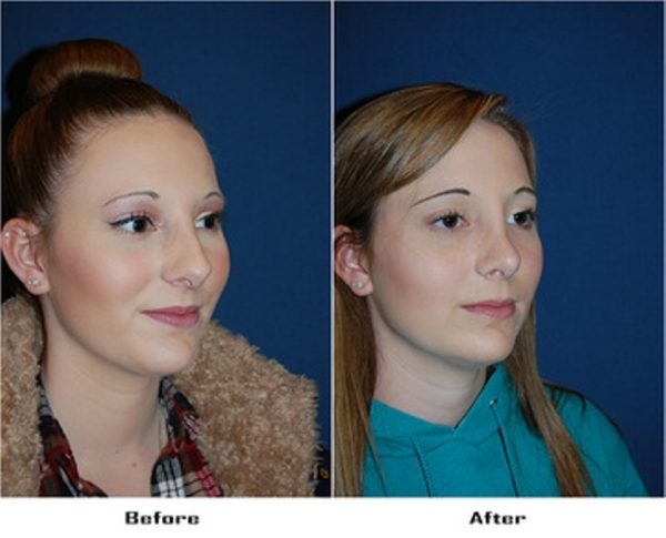 Nose job surgery in Charlotte NC: what should you know about a rhinoplasty